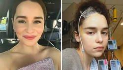 Enlace a Emilia Clarke comparte 5 fotos nunca vistas de cuando estuvo en el hospital tras 2 aneurismas