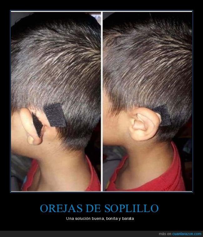 niño,orejas,soplillo,velcro