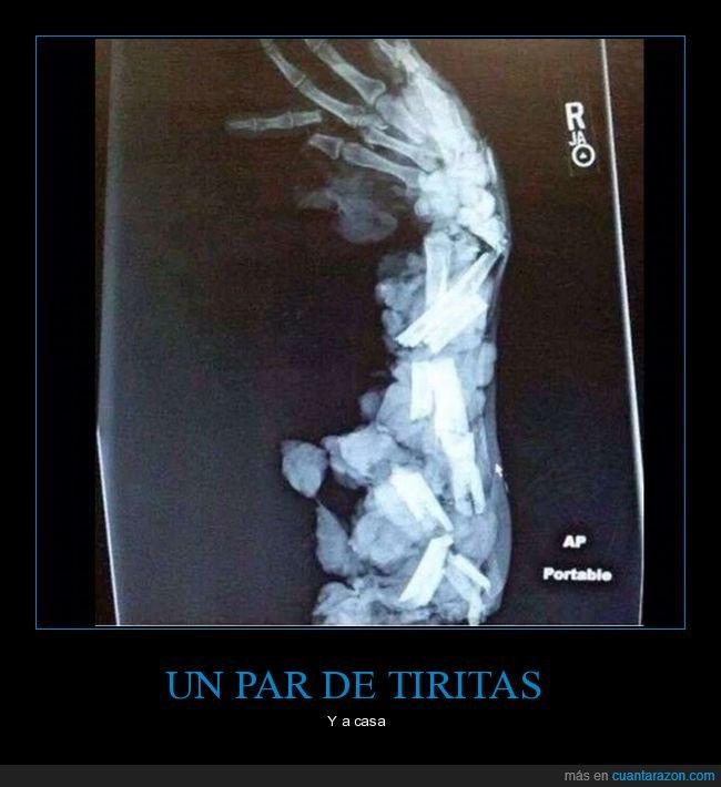 brazo,destrozado,radiografía