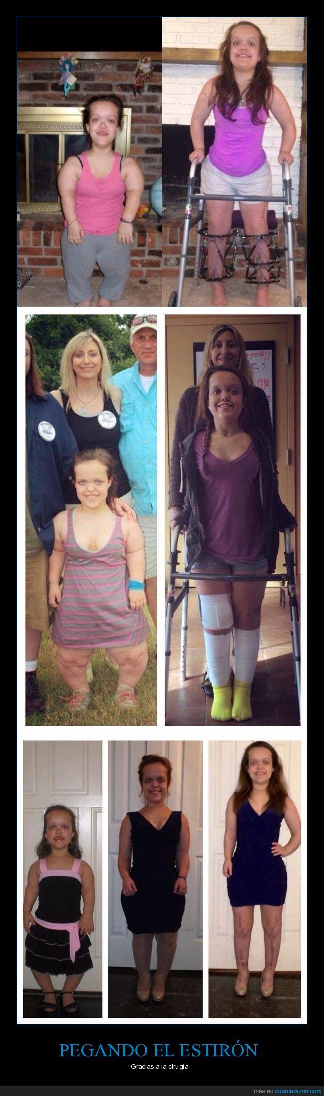 cirugía,enana,estatura,operación,piernas