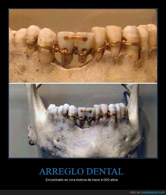 arreglo,dientes,momia