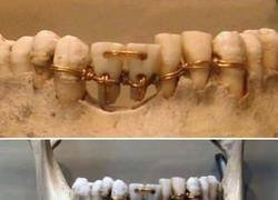 Enlace a Ortodoncia egipcia