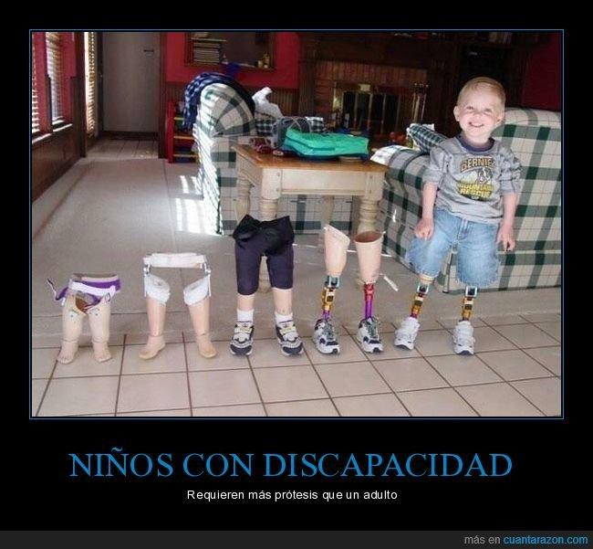 discapacidad,niño,piernas,prótesis