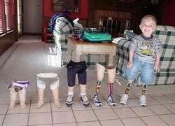 Enlace a Necesita prótesis nuevas conforme va creciendo