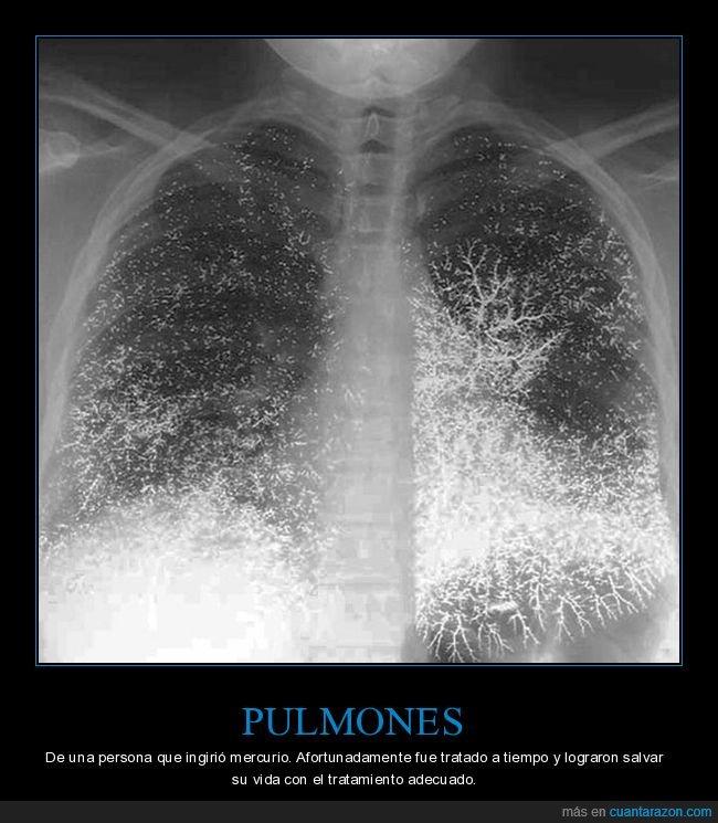 mercurio,pulmones