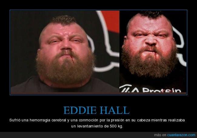 eddie hall,hemorragia cerebral,levantamiento,pesas,peso