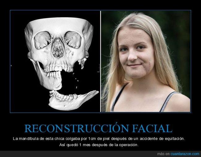 mandíbula,operación,reconstrucción facial