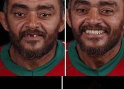 Enlace a Un dentista de brasil viaja para arreglar gratis la dentadura de los pobres