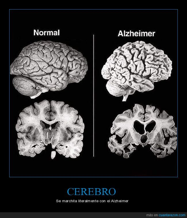 alzheimer,cerebro,marchitarse