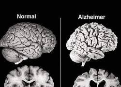 Enlace a Cerebro normal VS Cerebro con Alzheimer