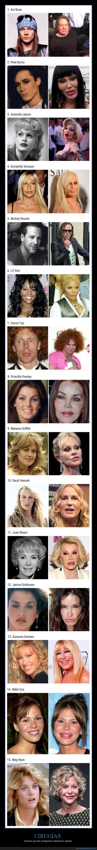 aspecto,cirugía,famosos