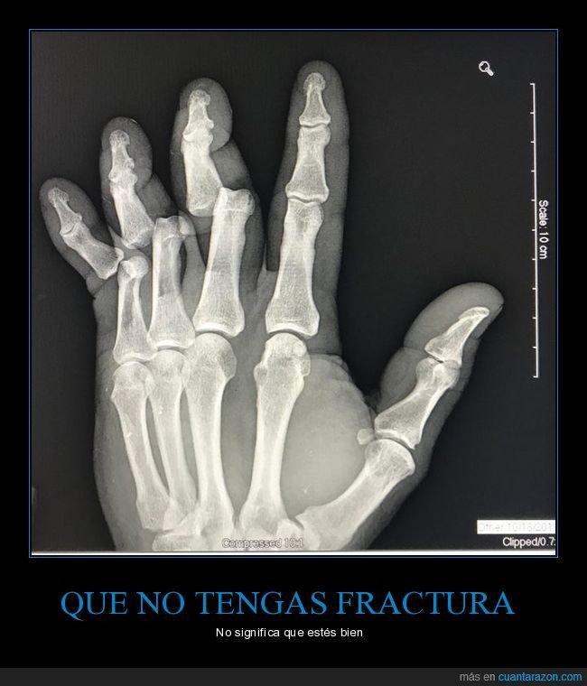 dedos,mano,radiografía,wtf