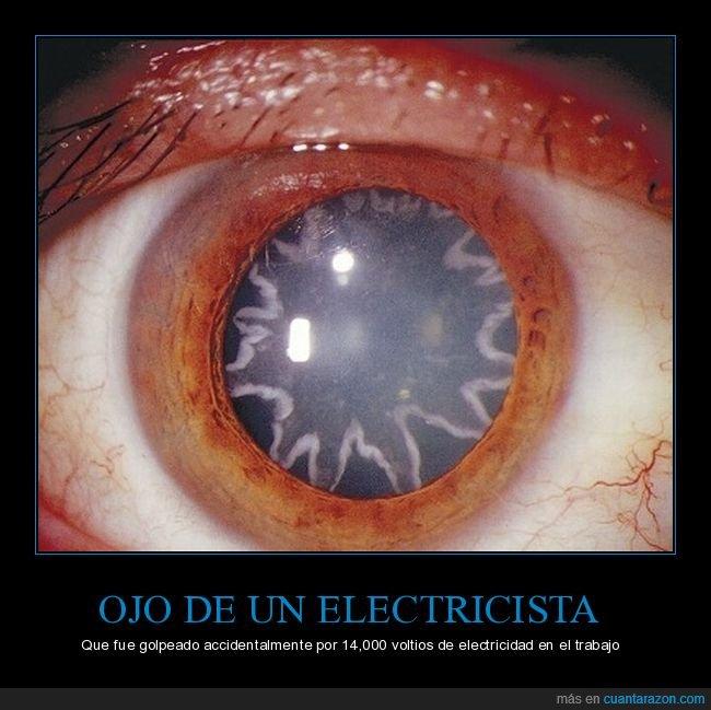 electricista,electrocutado,ojo