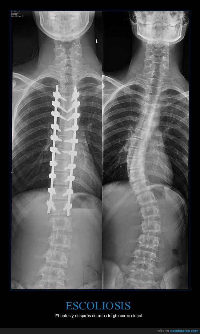 cirugía,columna,escoliosis