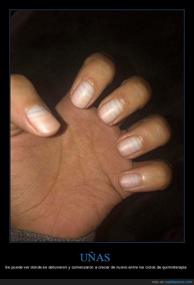 crecer,quimioterapia,uñas