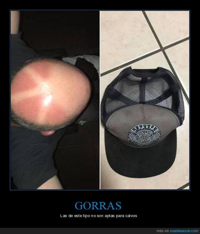 calvo,fails,gorra,quemado