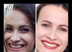 Enlace a Personas que hicieron un leve cambio en sus dentadura y les ha cambiado totalmente la cara