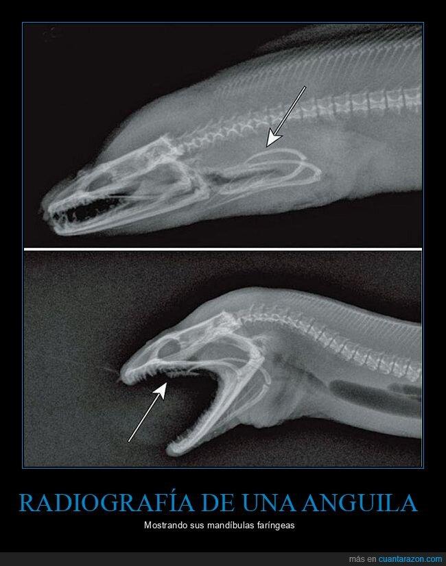 anguila,mandíbulas faríngeas,radiografía
