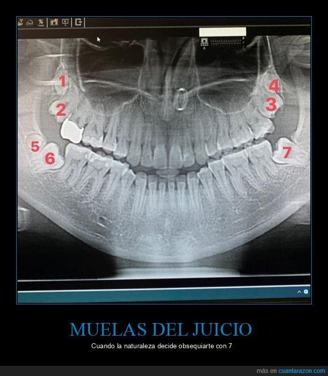 mandíbula,muelas del juicio,siete