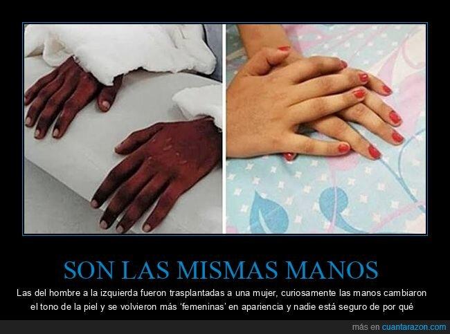 cambio,manos,transplante,wtf
