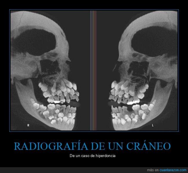 dientes,hiperdoncia,radiografía
