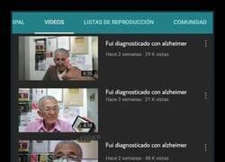 Enlace a Es lo que tiene el Alzheimer