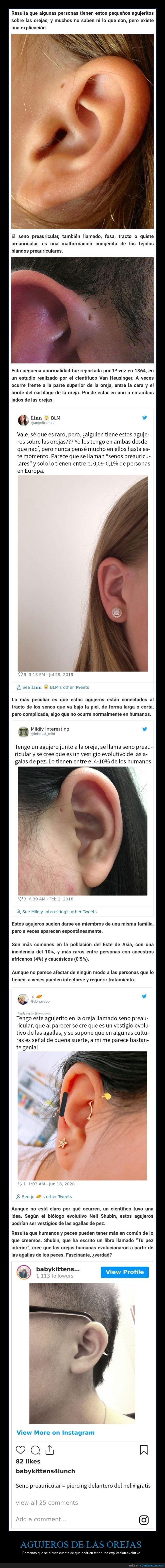 agujeros,evolución,orejas,seno preauricular