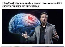 Enlace a El chip cerebral de Elon Musk
