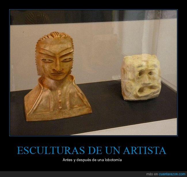 antes,artista,después,esculturas,lobotomía