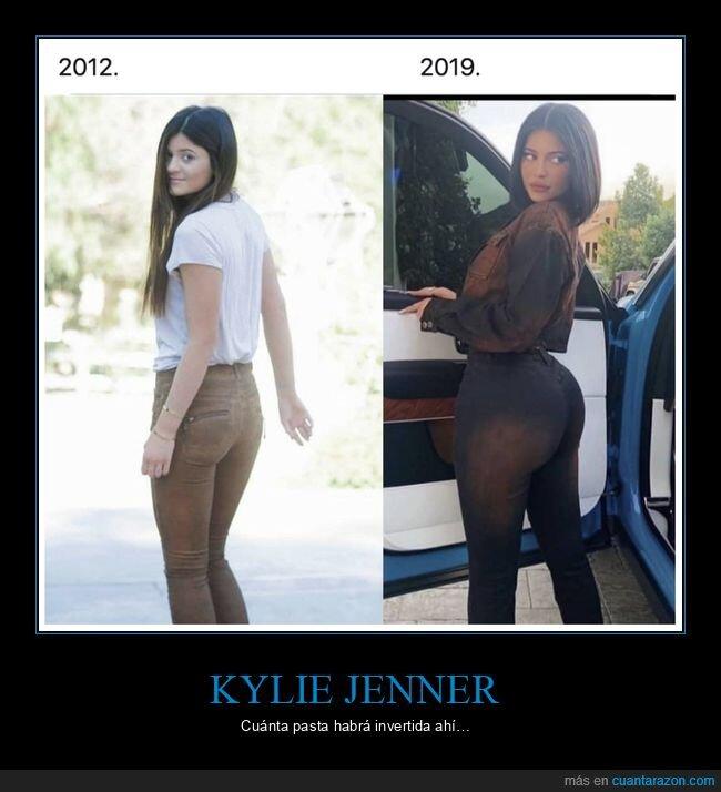 antes,después,kylie jenner