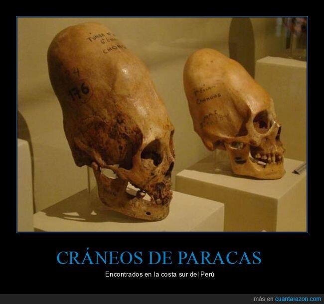 cráneos,paracas,perú