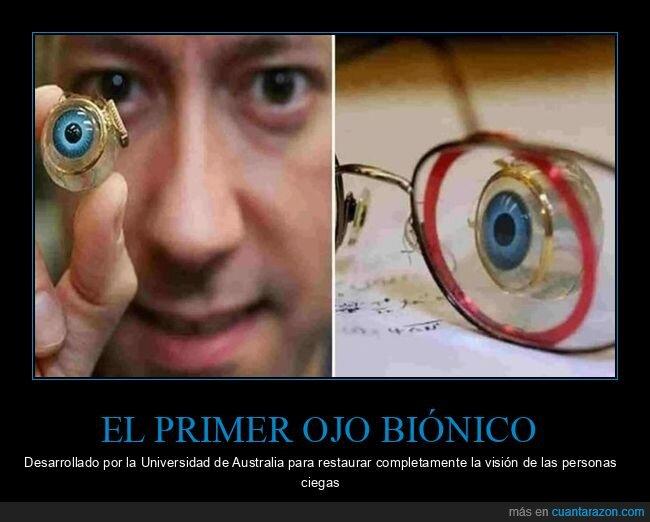 ciegos,ojo biónico,visión