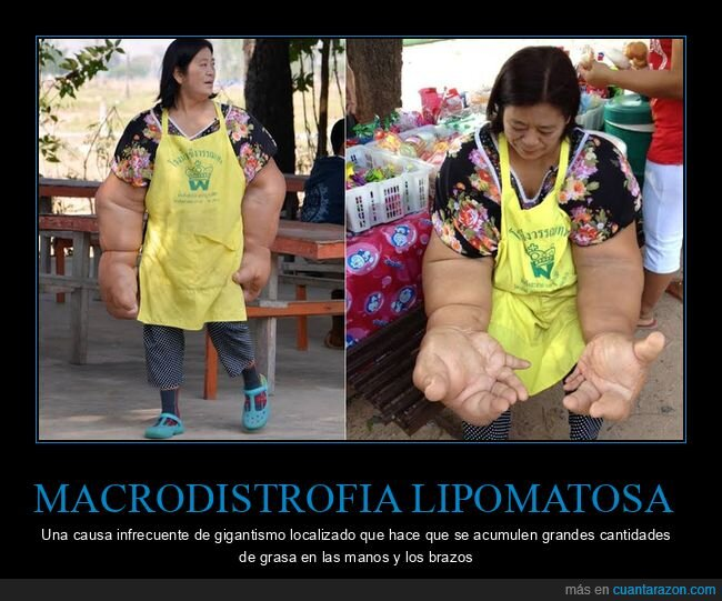 brazos,curiosidades,gigantismo,macrodistrofia lipomatosa