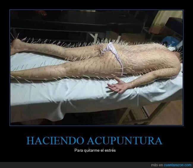 acupuntura,estrés