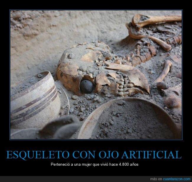 esqueleto,ojo artificial