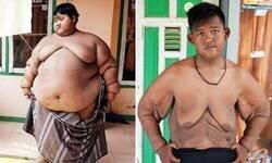 Enlace a Las consecuencias de la pérdida drástica de peso
