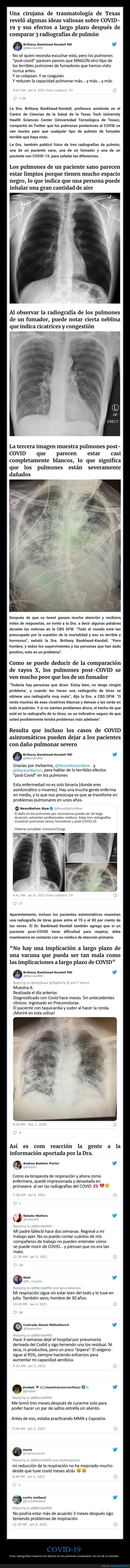 coronavirus,efectos,pulmones,radiografías
