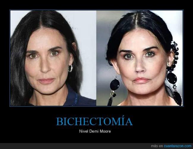 antes,bichectomía,demi moore,después