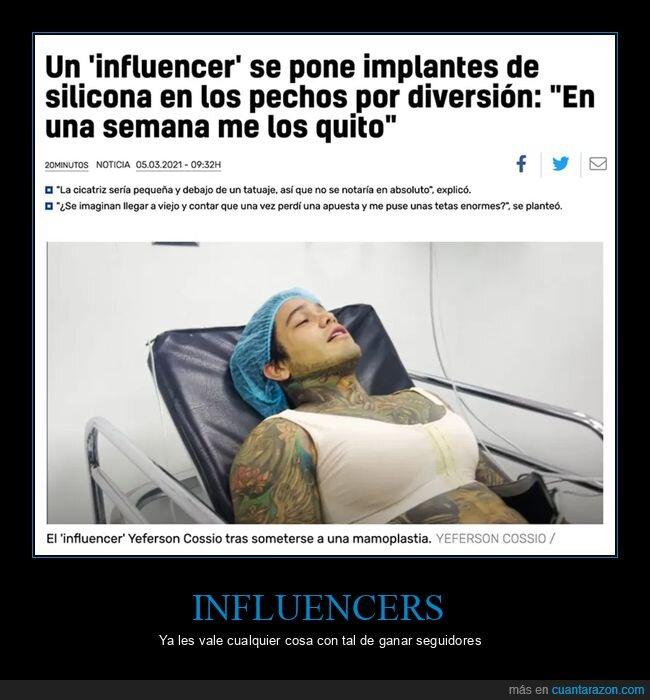 implantes,influencer,wtf