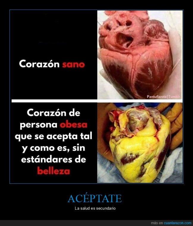 aceptarse,corazón,obesos