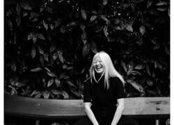 Enlace a Xueli fue abandonada por ser una bebé albina, pero creció y se convirtió en modelo de Vogue