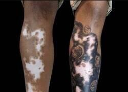 Enlace a Un tatuaje que se funde con el vitíligo