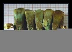 Enlace a Una de las dentaduras postizas más antiguas conocidas halladas en Europa