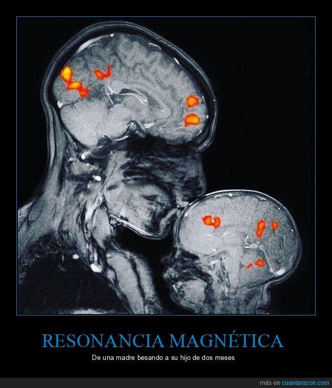 besando,hijo,madre,resonancia magnética