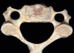 Enlace a Sé como la vértebra C6