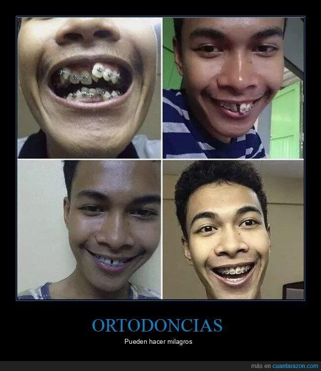 antes,después,dientes,ortodoncia