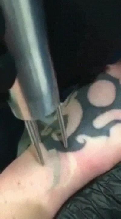 Enlace a ¿Alguna vez habías visto cómo se borra un tatuaje?