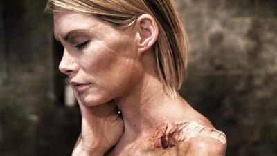 42064 - El testimonio de una especialista de Resident Evil que pierde un brazo y demanda a los productores