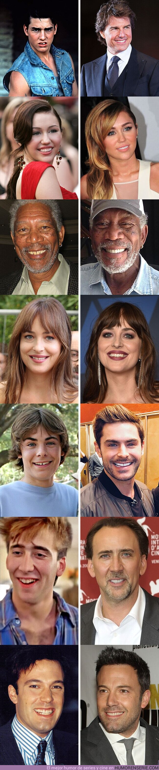 56893 - GALERÍA: 7 actores que cambiaron su dentadura por completo cuando se convirtieron en estrellas