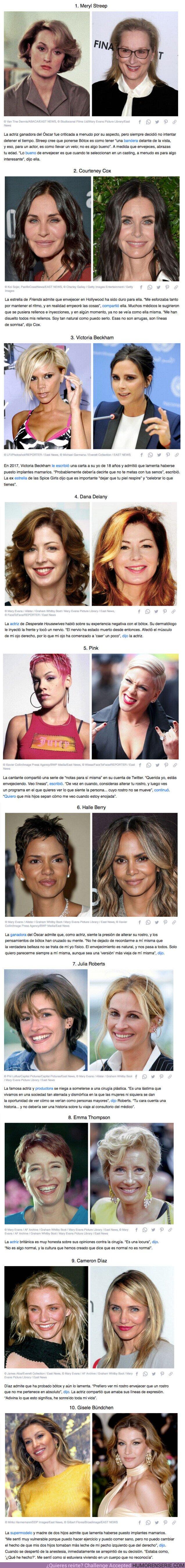 """64814 - GALERÍA: 10 Celebridades comparten las razones por las cuales dijeron """"no"""" a la cirugía estética, incluso aquellas que se sometieron a procedimientos en el pasado"""